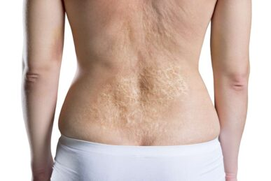 Laser Hair Removal Burns: Know the Risks